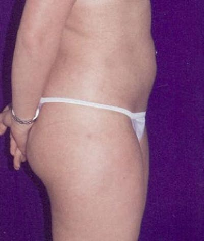 Liposuction Gallery - Patient 4861783 - Image 4