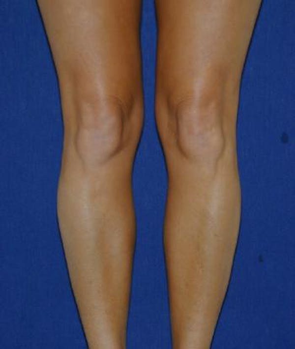 Calf Augmentation with Implants Gallery - Patient 4861784 - Image 1