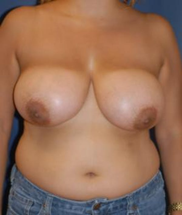 Breast Reduction Gallery - Patient 4861786 - Image 1