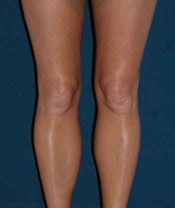 Calf Augmentation with Implants Gallery - Patient 4861784 - Image 2