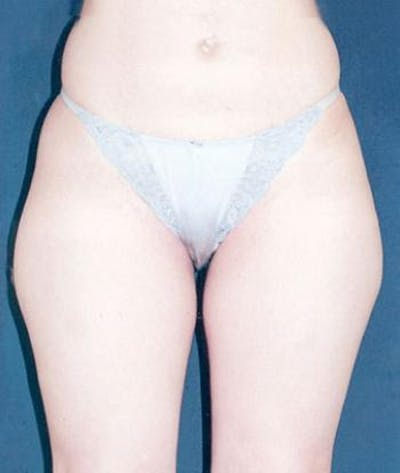 Liposuction Gallery - Patient 4861785 - Image 1
