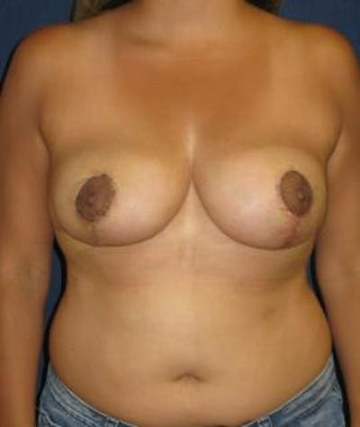 Breast Reduction Gallery - Patient 4861786 - Image 2