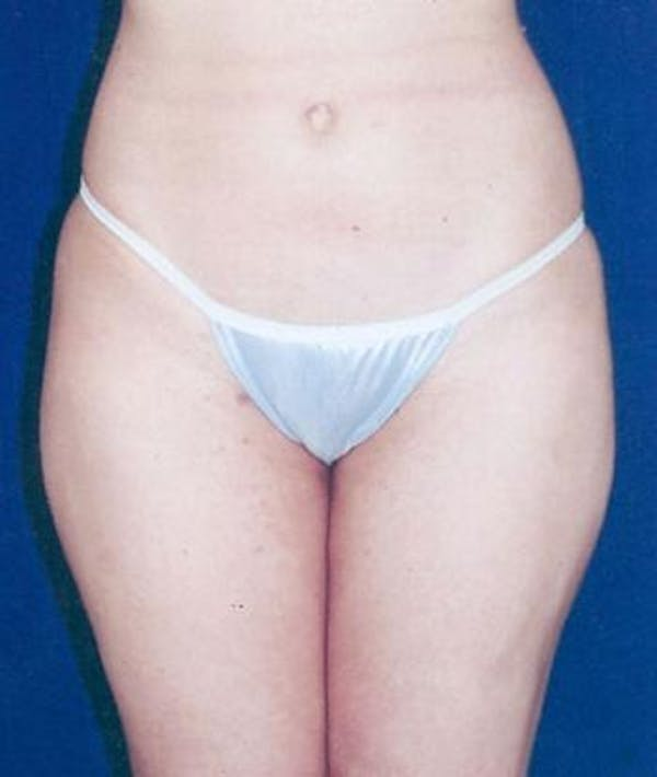 Liposuction Gallery - Patient 4861785 - Image 2
