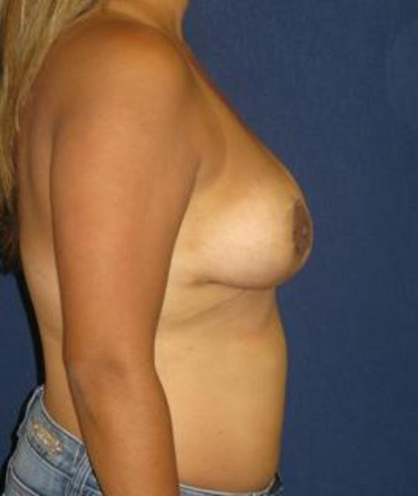 Breast Reduction Gallery - Patient 4861786 - Image 4