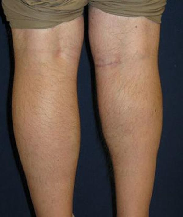 Calf Augmentation with Implants Gallery - Patient 4861787 - Image 2
