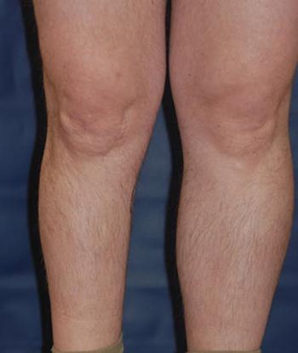 Calf Augmentation with Implants Gallery - Patient 4861787 - Image 3