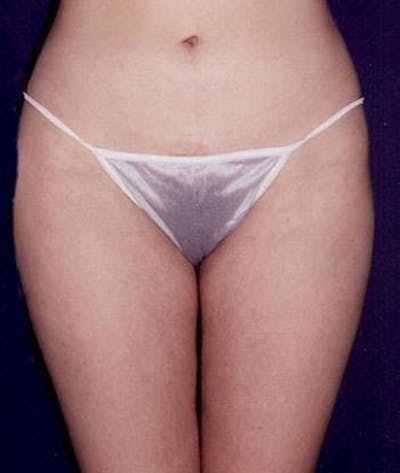 Liposuction Gallery - Patient 4861788 - Image 2