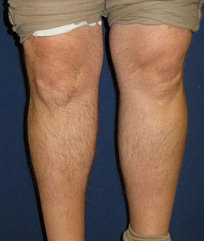 Calf Augmentation with Implants Gallery - Patient 4861787 - Image 4