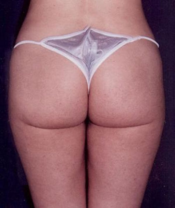 Liposuction Gallery - Patient 4861788 - Image 4