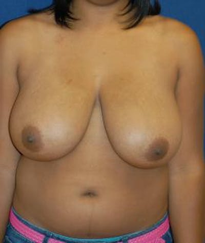 Breast Reduction Gallery - Patient 4861791 - Image 1