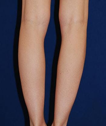 Calf Augmentation with Implants Gallery - Patient 4861790 - Image 1