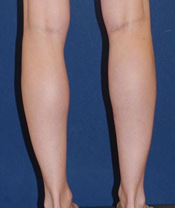 Calf Augmentation with Implants Gallery - Patient 4861790 - Image 2