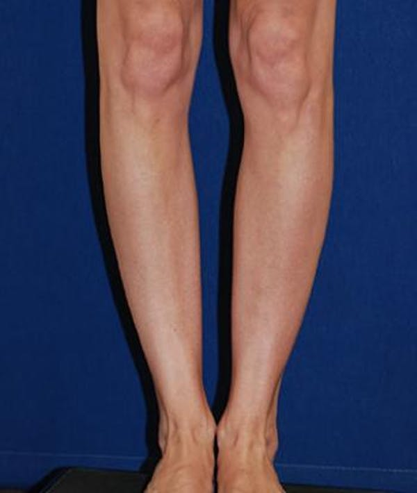 Calf Augmentation with Implants Gallery - Patient 4861790 - Image 3