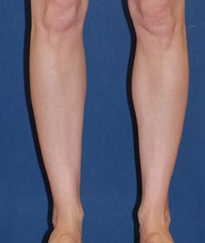 Calf Augmentation with Implants Gallery - Patient 4861790 - Image 4
