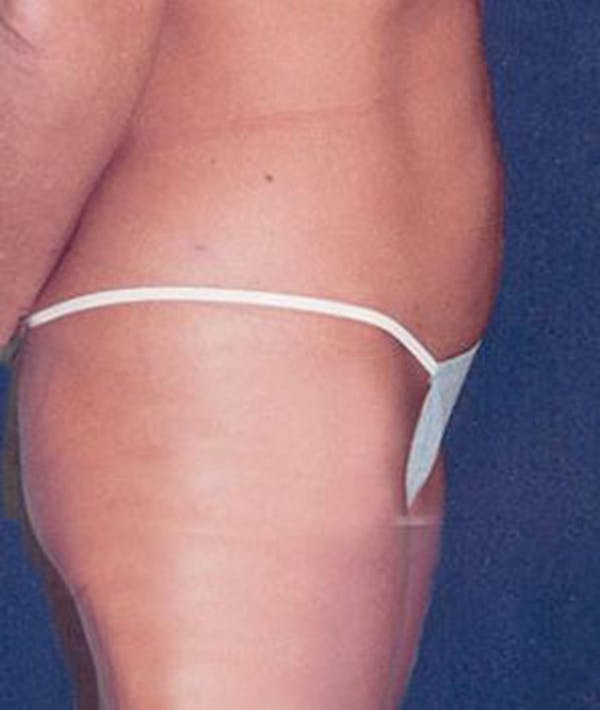 Liposuction Gallery - Patient 4861792 - Image 4