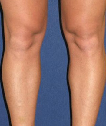 Calf Augmentation with Implants Gallery - Patient 4861794 - Image 1