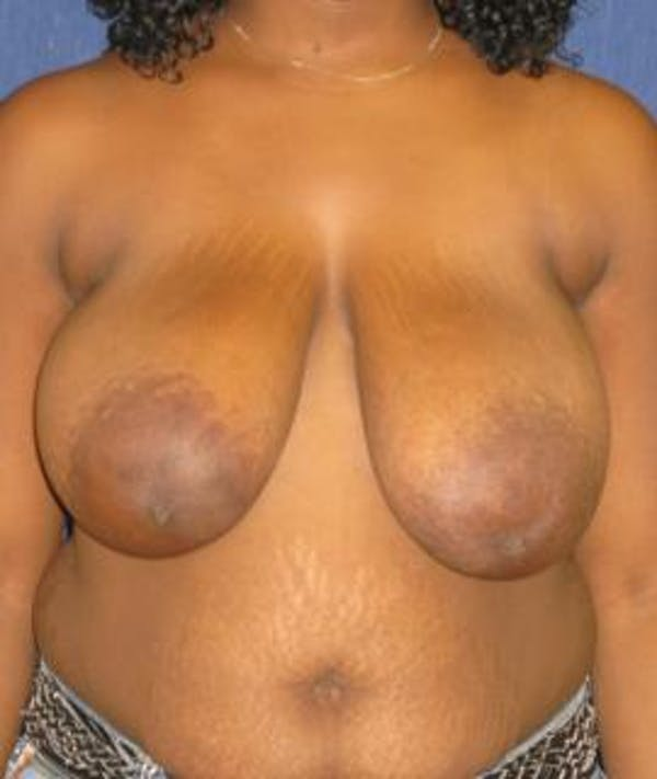 Breast Reduction Gallery - Patient 4861795 - Image 1