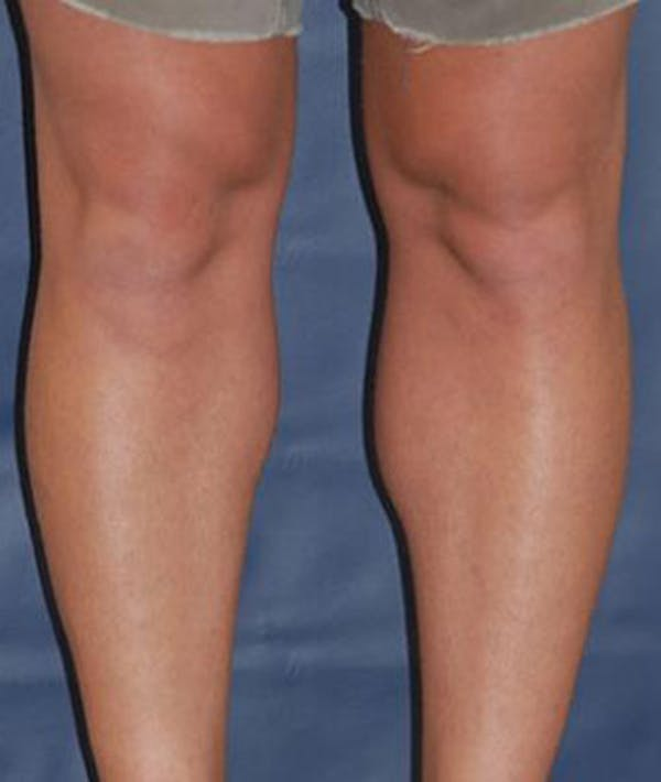 Calf Augmentation with Implants Gallery - Patient 4861794 - Image 2