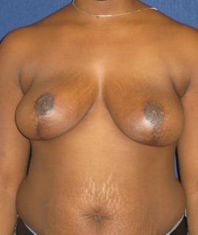 Breast Reduction Gallery - Patient 4861795 - Image 2