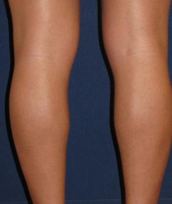 Calf Augmentation with Implants Gallery - Patient 4861794 - Image 3
