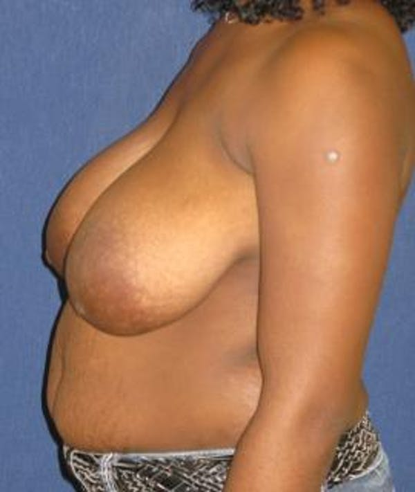 Breast Reduction Gallery - Patient 4861795 - Image 3
