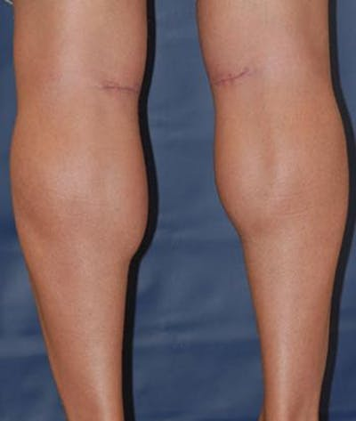 Calf Augmentation with Implants Gallery - Patient 4861794 - Image 4