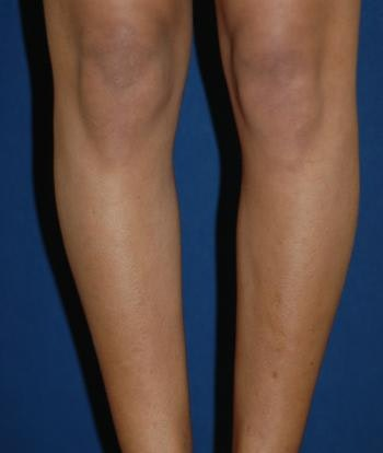 Calf Augmentation with Implants Gallery - Patient 4861797 - Image 1