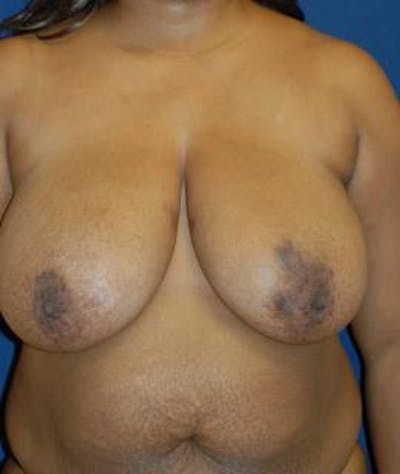 Breast Reduction Gallery - Patient 4861798 - Image 1