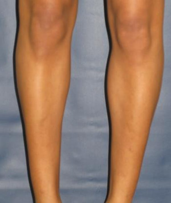 Calf Augmentation with Implants Gallery - Patient 4861797 - Image 2