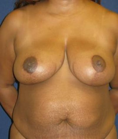 Breast Reduction Gallery - Patient 4861798 - Image 2