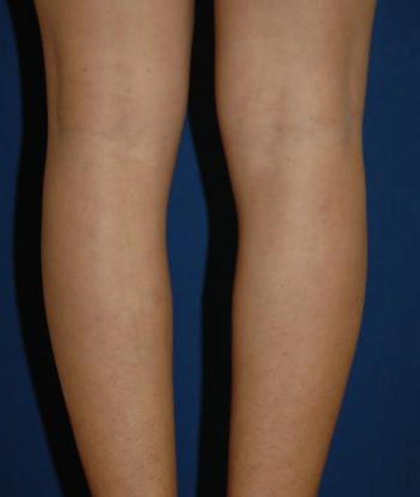 Calf Augmentation with Implants Gallery - Patient 4861797 - Image 3