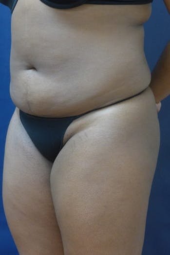 Liposuction Gallery - Patient 4861799 - Image 1