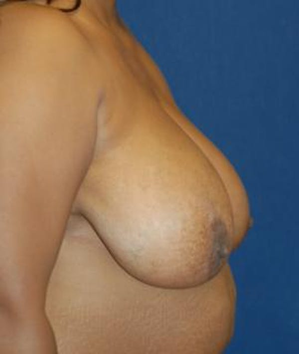 Breast Reduction Gallery - Patient 4861798 - Image 3