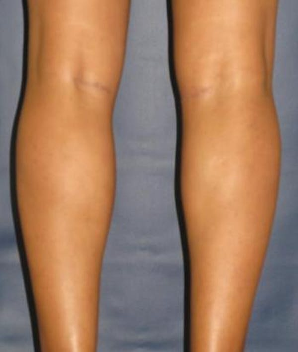Calf Augmentation with Implants Gallery - Patient 4861797 - Image 4
