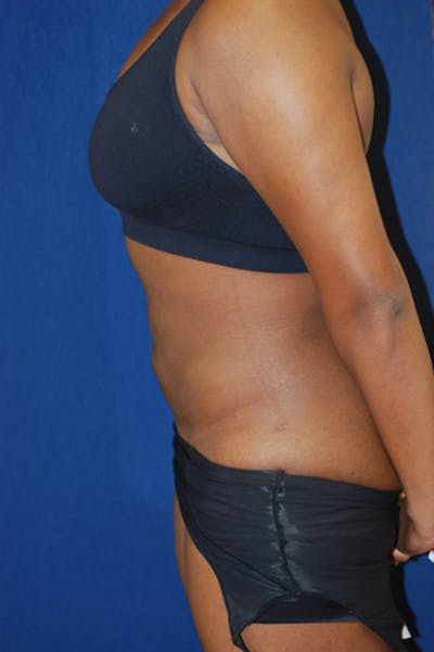 Liposuction Gallery - Patient 4861799 - Image 2