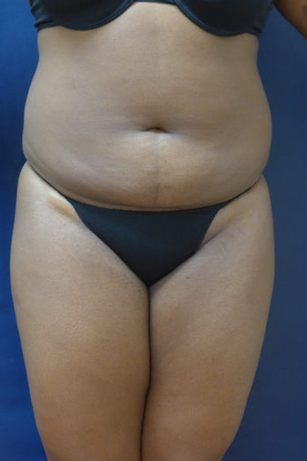 Liposuction Gallery - Patient 4861799 - Image 3
