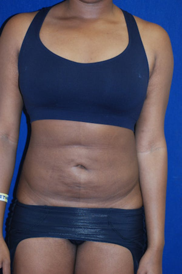 Liposuction Gallery - Patient 4861799 - Image 4