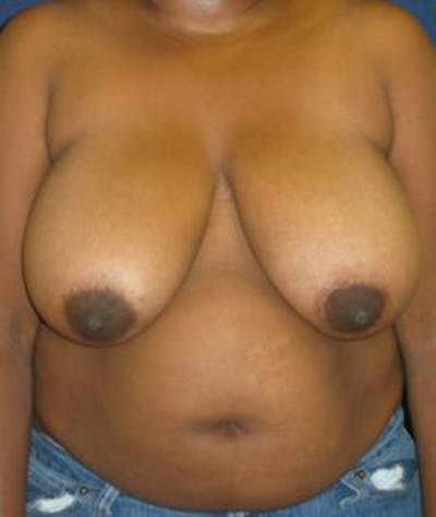 Breast Reduction Gallery - Patient 4861801 - Image 1