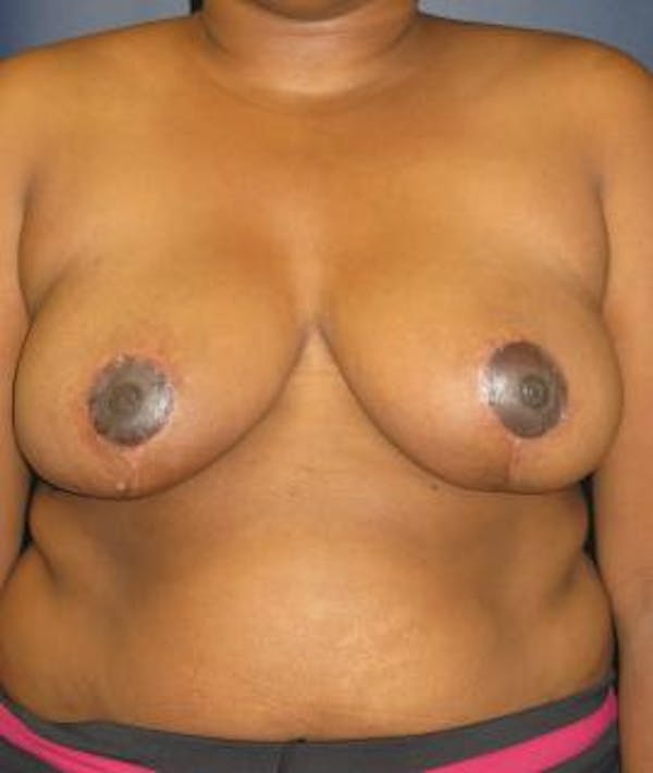 Breast Reduction Gallery - Patient 4861801 - Image 2
