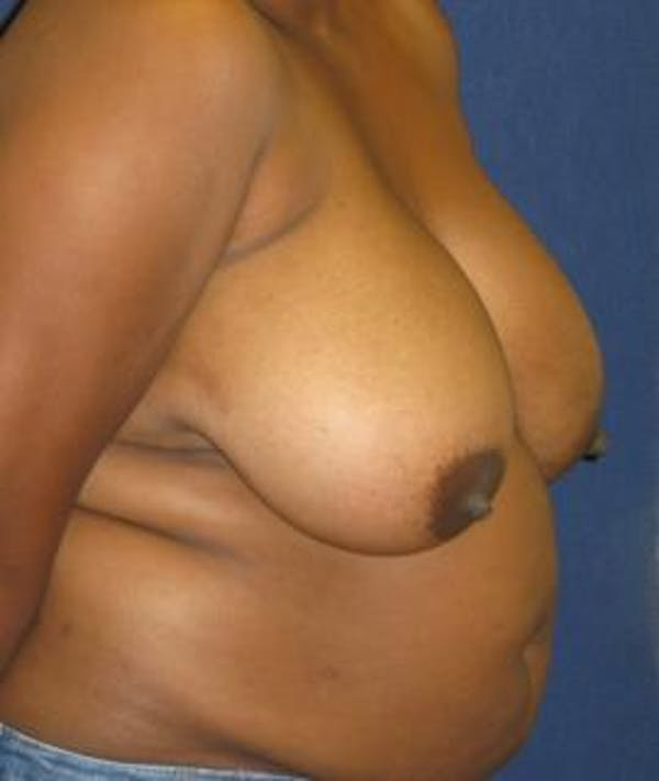 Breast Reduction Gallery - Patient 4861801 - Image 3