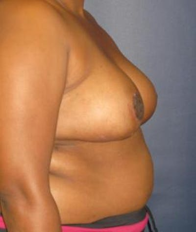 Breast Reduction Gallery - Patient 4861801 - Image 4