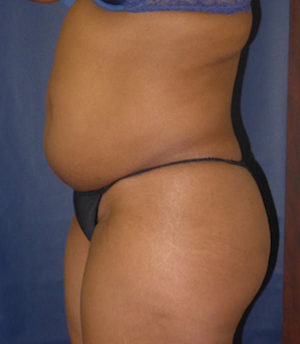 Liposuction Gallery - Patient 4861802 - Image 3