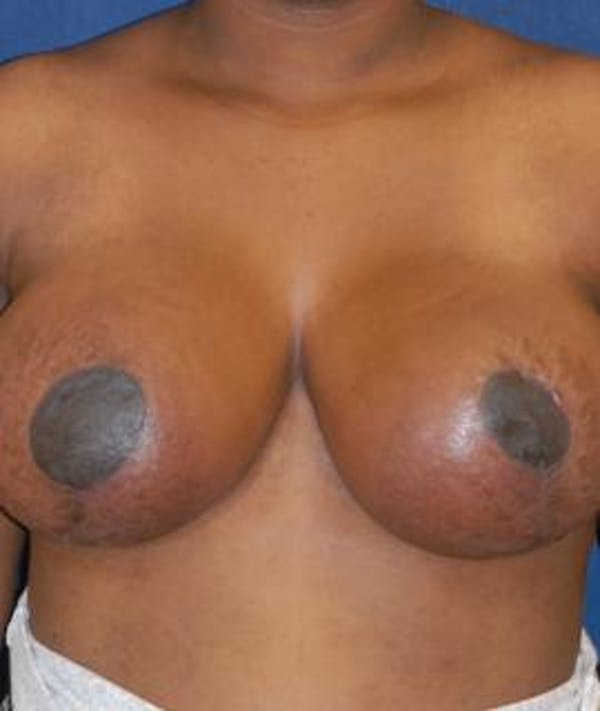 Breast Reduction Gallery - Patient 4861803 - Image 2