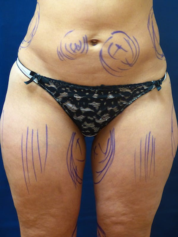 Liposuction Gallery - Patient 4861804 - Image 1