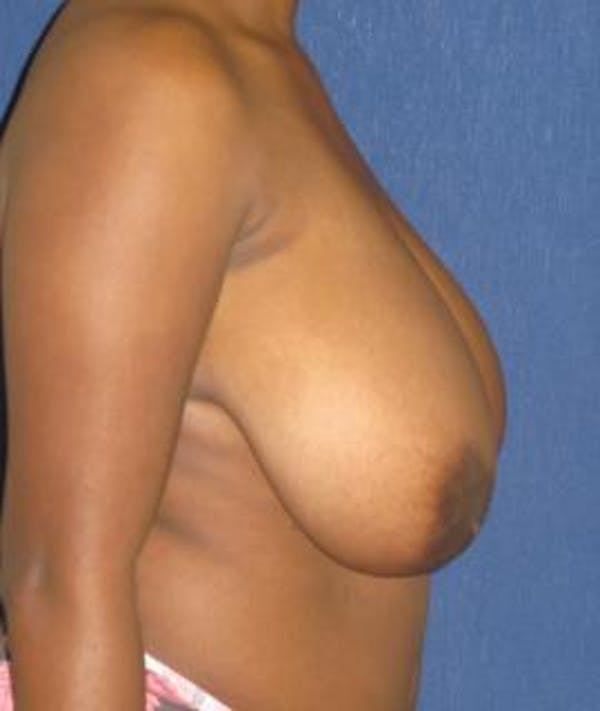 Breast Reduction Gallery - Patient 4861803 - Image 3