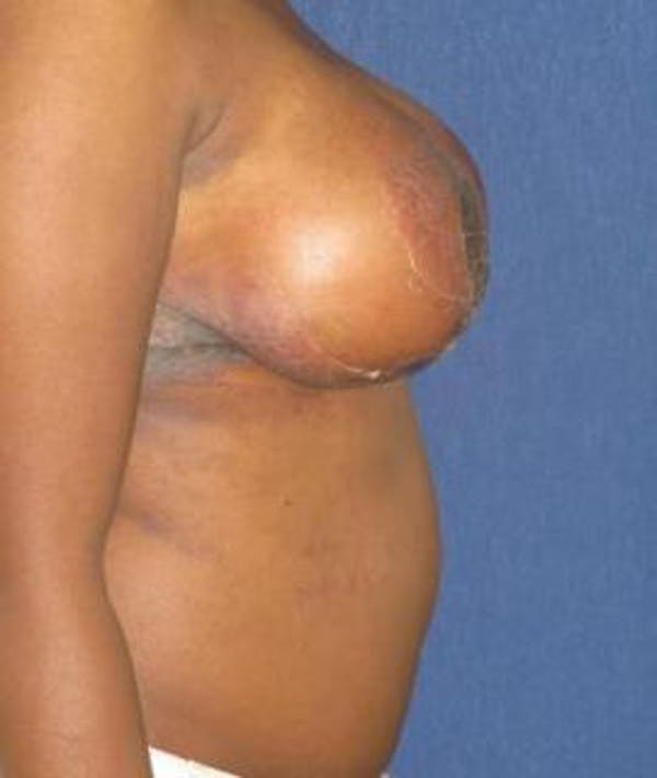 Breast Reduction Gallery - Patient 4861803 - Image 4