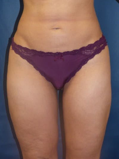 Liposuction Gallery - Patient 4861804 - Image 2