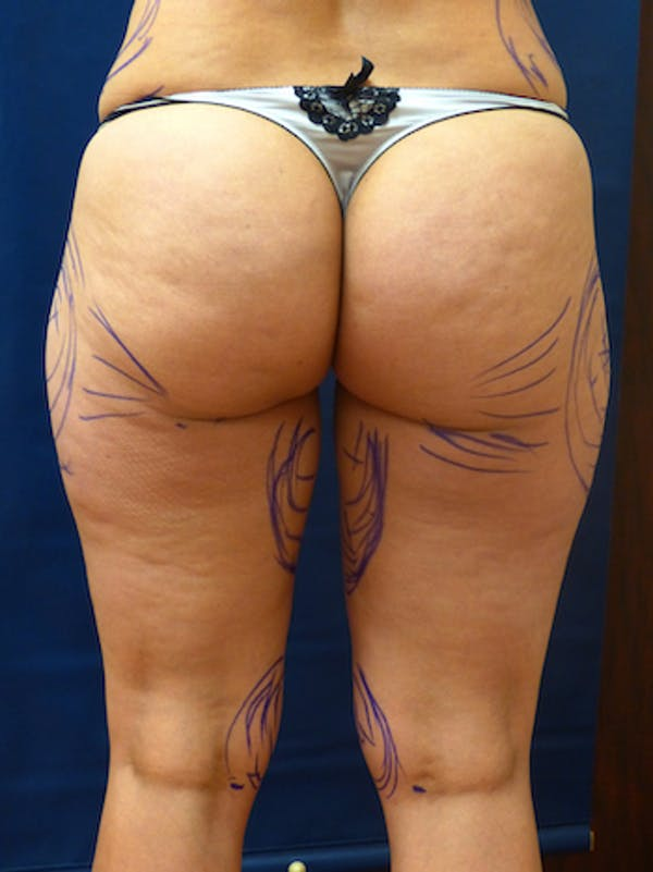 Liposuction Gallery - Patient 4861804 - Image 3