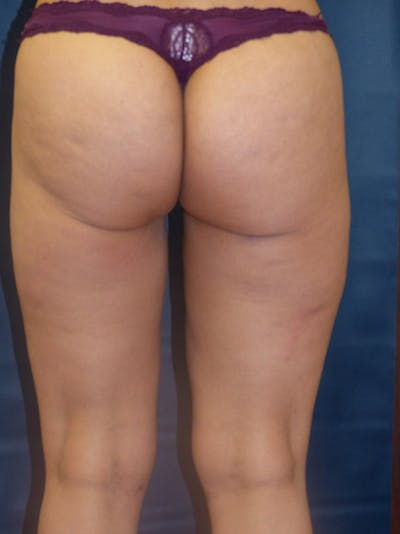 Liposuction Gallery - Patient 4861804 - Image 4