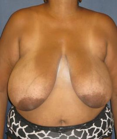 Breast Reduction Gallery - Patient 4861805 - Image 1